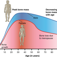 Graph Showing Relationship Between Age and Bone Mass
