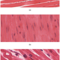 The Three Types of Muscle Tissue