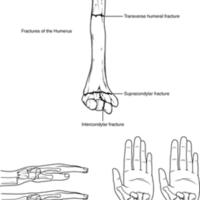 Fractures of the Humerus and Radius