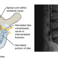 Herniated Intervertebral Disc